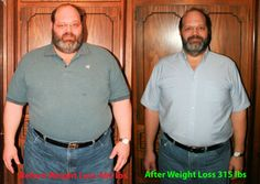 101 Best Sleeve Surgery Wight Lost Images Loosing Weight Losing