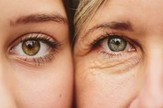 """""""Anti aging skin care"""" is about discipline. Anti aging skin care is retarding the ageing process. Here are a few tips for proactive anti aging skin care: Creme Anti Age, Anti Aging Eye Cream, Best Eye Cream, Anti Aging Tips, Best Anti Aging, Anti Aging Skin Care, Ride Du Lion, Droopy Eyelids, Beauty Hacks For Teens"""