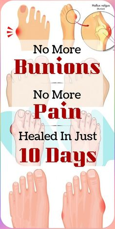 bunions + bunions remedy + get rid of bunions + bunion exercises + bunion natural remedies + bunion products + how to fix bunion + bunion causes + bunion relief + bunion essential oils + bunion treatment + how to treat bunion + bunion cure Bunion Remedies, Foot Remedies, Natural Remedies For Allergies, Natural Headache Remedies, Natural Cures, Healthy Beauty, Health And Beauty, How To Treat Bunions, Health And Wellness