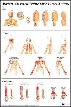 Ligament Pain Referral Patterns