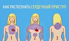 Как распознать сердечный приступ за месяц до того, как он случится   Новость   Всеукраинская ассоциация пенсионеров