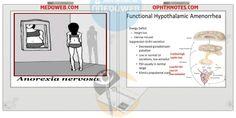Hypothalamic amenorrhea aetiology,treatment and videos
