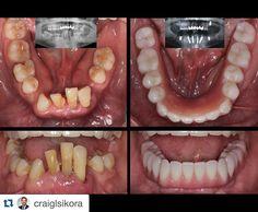 #Repost @craiglsikora with @repostapp.  Mandibular rehab of failing dentition. Immediately loaded and gave this patient her confidence back. #prosth5team #straumann #surgicalprosth #dentalimplant #dentallab #dentallife #allon4 #smiledesign #smileagain #teethinaday #dental #alldent #prosthodontics #smile #extrememakeover #cosmeticdentistry #NPAW #npaw16 #prosthodontist #prosthodonticawareness #whatisprosthodontics #uicprosth #reconstructicedentistry #dentalcases by dentalcases Our Cosmetic…