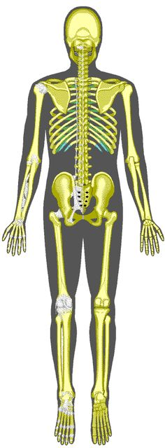 Interactive Skeleton