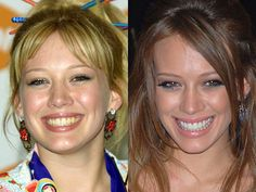 Dental Makeover Before and After Photo | Hilary Duff www.fairlawndentalassoc.com