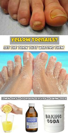 Yellow toenails? See the trick that whitens them