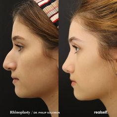 Nose Plastic Surgery, Nose Surgery, Massage Tips, Lymph Massage, Rhinoplasty Before And After, Rhinoplasty Surgery, Aesthetic Dermatology, Nose Shapes, Cosmetic Procedures