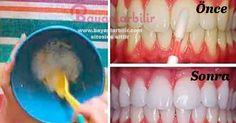Limon karbonat ve muz kabuğu ile doğal diş beyazlatma yöntemi, diş beyazlatma, doğal diş beyazlatma, diş plaklarını temizleme, limon karbonat diş temizliği