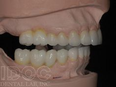 Do you stuck with your tooth problem? Are you planning for Full Cast Crown? Contact us to get immediate relief.