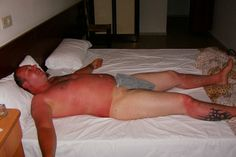 18 of the Most Horrible Sunburn Fails that'll Leave You Literally Cringing