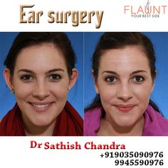 Ear Surgery Please visit us- www.cosmeticsurgerymangalore.com