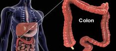 Colon Cancer Causes & Risk Factors Cancer Sign, Colon Cancer, Cancer Screening Tests, Ulcerative Colitis, Sari, Alternative Health, Cancer Treatment, Health And Wellness, Health Tips