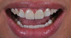 Dental-Revue | Статьи | Терапевтическая | Прямые адгезивные реставрации 11 и 21 (Leandro Pereira).