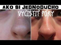 Jak se zbavit černých teček na nose? Tato slečna vám ukáže dokonalý způsob, který zvládne každý! | NávodyNápady.cz