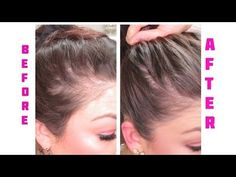 I'M GOING BALED! CURE FOR WOMEN Lossing Hair! Hair Loss! Rogaine For Women. Before and after - YouTube
