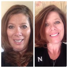 This is my before and after. I love my Nerium. www.turresa.nerium.com