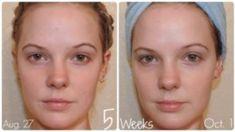 8 levných triků pro dokonalou pleť a vlasy Basic Skin Care Routine, Korean Beauty Routine, Perfect Skin, Belleza Natural, Diy Skin Care, Facial Masks, Natural Skin Care, Skincare Routine, Pure Honey
