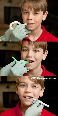 Oral Motor Exercises to Improve Jaw Stability