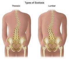 Exercises That Help Scoliosis thumbnail