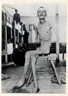 1945 #DachauConcentrationCamp inmate after liberation. How can anyone be proud of causing this?????