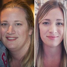 Suzanne Ryan before and after ketogenic diet