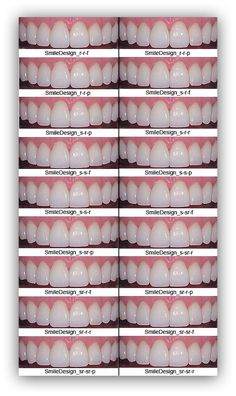 porcelain-veneers-shape-color-bl1-bl2-bl3-empress-emax-loren-library.png 591×994 пикс