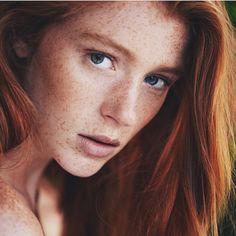 Freckles http://trinamlaser.com/tag/tri-nam-da