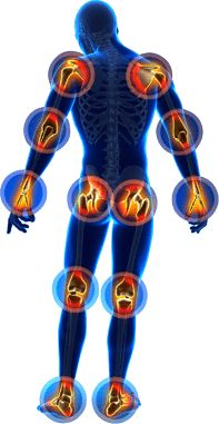 With every type of arthritis, the location surrounding the joints like the elbow, knee and wrists may become inflamed, red as well as sensitive to touch. In numerous cases, there's a warm feeling around a joint that has arthritis. Juvenile Arthritis, Elbow Pain, Knee Pain, Curcumin Supplement, Mental Training, Neck And Back Pain, Alzheimer, Compost, Rheumatoid Arthritis