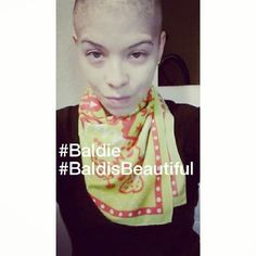 Join a movement Bald is Beautiful created my an alopecia fighter Neill Colman from Instagram and her own website show woman just cause you bald does not mean you are not beautiful