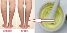 Domowa maść na żylaki z domowych składników. Sposób na piękne nogi Celery, Detox, Food And Drink, Vegetables, Healthy, Gadgets, Youtube, Ideas, Art
