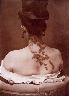 A woman with syphilis, pre penicillin.