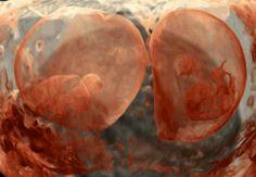 Embriones de gemelos de 6 semanas cada uno en su saco amniótico