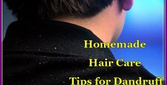 Homemade Hair Care Tips for Dandruff Quickly; Dandruff is an embarrassing issue that irritates many people. Certain commercial products are Tips For Dry Hair, Beauty Tips For Skin, Hair Care Tips, Beauty Hacks, Curly Hair Care, Curly Hair Styles, Homemade Hair, Hair Care Routine, Dandruff