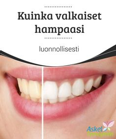 Kuinka valkaiset hampaasi luonnollisesti   Jos olet #tupakoinut useita vuosia tai jos juot teetä, kahvia tai liian paljon #tummanvärisiä juomia, on mahdollista, että sinulla on #kellastuneet hampaat  #Kauneus