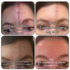 Meet Holly!  She had a nasty scar after having surgery from skin cancer.  Having cancer in itself is unimaginable then to have a scar that size on the middle of your forehead...  Thankfully Rodan Fields was able to help in a HUGE way!  She started with the Reverse Regimen adding the Amp MD Roller