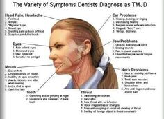 1000 images about tmj information on pinterest jaw pain  : tmj pain diagram - findchart.co