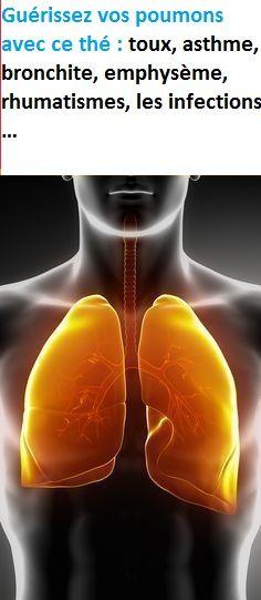 Guérissez vos poumons avec ce thé : toux, asthme, bronchite, emphysème, rhumatismes, les infections … Movie Posters, Movies, Lungs, Being Healthy, Camper Remodeling, Health Remedies, 2016 Movies, Film Poster, Films