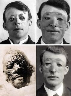Walter Yeo, Known as the First Person to Have Plastic Surgery