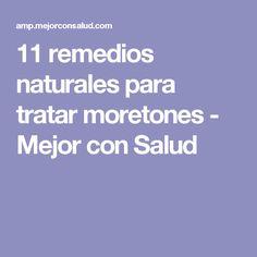 11 remedios naturales para tratar moretones - Mejor con Salud