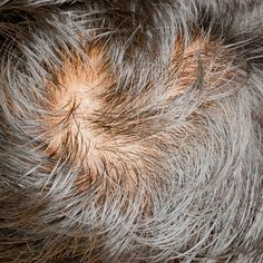 The lastest research into reserving baldness suggests that cells in the immune system may play a role.