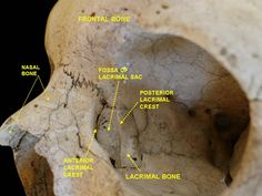 Slide4gre - Posterior lacrimal crest - Wikipedia, the free encyclopedia
