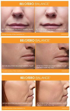 Belotero Balance.  Before and After photos. Call Carolina Laser & Cosmetic Center in Winston Salem, NC to schedule your consultation! (336) 659-2663.