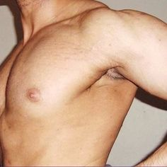 #stretch marks on men's skin can result from several factors. If you're an active male, chances are you have a stretch mark or two. They're most common on athletes, bodybuilders and other individuals who have either lost weight or increased muscle mass too fast for their skin to adapt; rapid weight loss and weight gain are the usual reasons for the appearance of stretch marks.