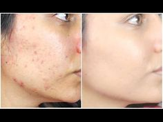 How To: Cover Acne & Acne Scars With Drugstore Products