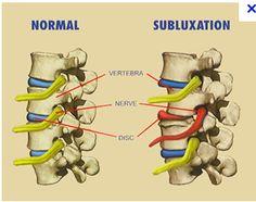 Chiropractic Naperville, The Purpose Of Chiropractic