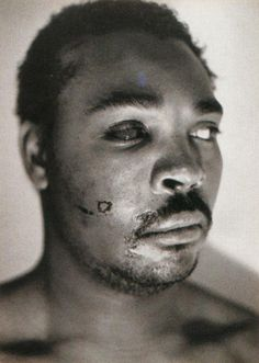 1991, Rodney King after his beating.
