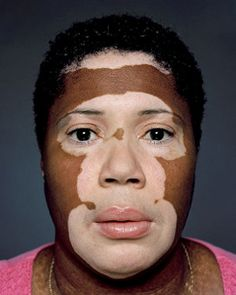 Is Vitiligo Treatment Effective?