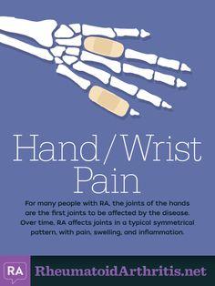 Hand Wrist Pain