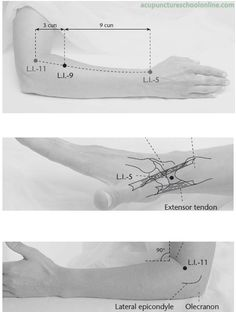 ( Upper Angle SHANGLIAN - Acupuncture Points ) 3 cun distal to the lateral end of the elbow crease in the direction of the anatomical snuffbox, on the line connecting ➞ and ➞ Acupuncture Benefits, Acupuncture Points, Acupressure Points, Mudras, Reflexology Massage, Sports Massage, Traditional Chinese Medicine, Deep Tissue, Qigong