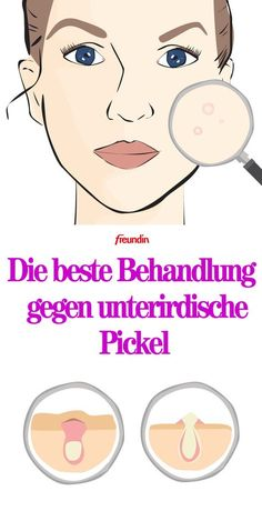 Treat subterranean pimples: That& how it works- Unterirdische Pickel behandeln: So geht's Underground pimples are well below the skin surface, so they need special treatment - Beauty Care, Diy Beauty, Beauty Skin, Beauty Hacks, Star Beauty, Beauty Ideas, Brown Spots On Face, Tips Belleza, Cuddling